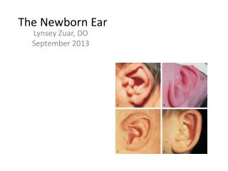 The Newborn Ear