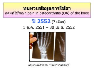 ??????????????????? ????????????????  pain in osteoarthritis (OA) of the knee