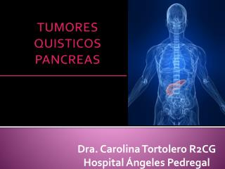 TUMORES QUISTICOS PANCREAS