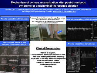 Clinical Presentation Women of 55 years. Chronic valvular disease left saphenous vein.