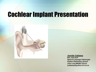 Cochlear Implant Presentation
