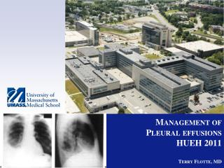 Management of  Pleural effusions HUEH 2011 Terry Flotte, MD