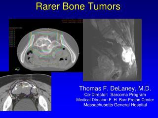 Rarer Bone Tumors