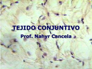 TEJIDO CONJUNTIVO Prof. Nahyr Cancela