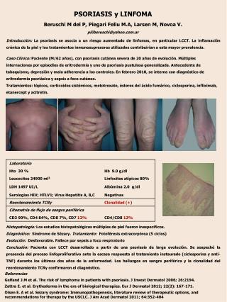 Histopatología:  Los estudios  histopatológicos  múltiples de piel fueron inespecíficos.