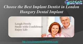 Choose the Best Implant Dentist in London | Hungary Dental I