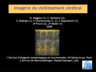 Imagerie du vieillissement cérébral