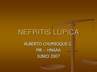 NEFRITIS LUPICA