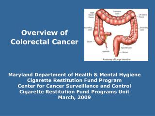 Overview of  Colorectal Cancer