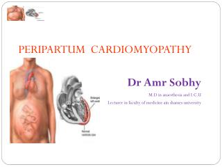 PERIPARTUM  CARDIOMYOPATHY Dr Amr Sobhy M.D in anaesthesia and I.C.U