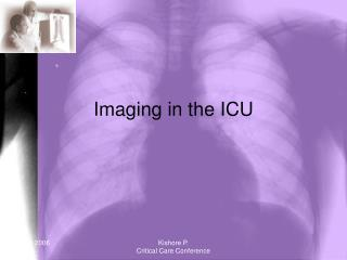 Imaging in the ICU
