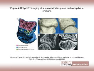 Figure 4  HR‑pQCT imaging of anatomical sites prone to develop bone erosions
