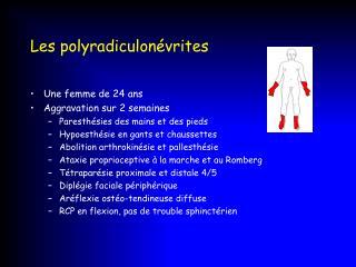 Les polyradiculon�vrites