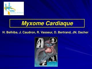 Myxome Cardiaque