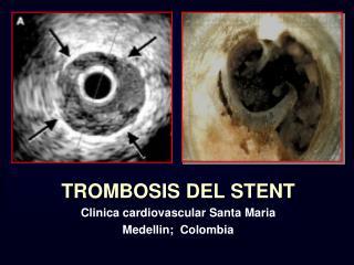 TROMBOSIS DEL STENT Clinica cardiovascular Santa Maria Medellin;  Colombia