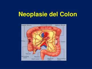 Neoplasie del Colon