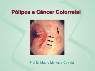 Pólipos e Câncer Colorretal