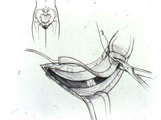 Cartoon of taking fascia