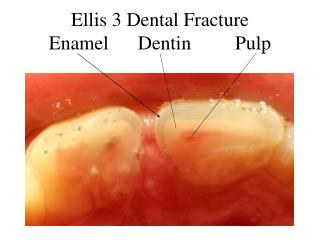 Ellis 3 Dental Fracture Enamel      Dentin         Pulp