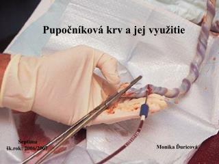 Pupočníková krv a jej využitie