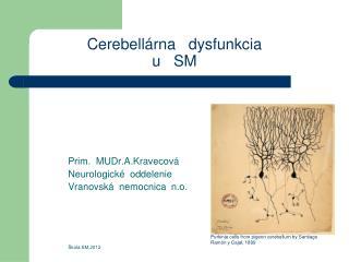 Cerebell�rna   dysfunkcia  u   SM