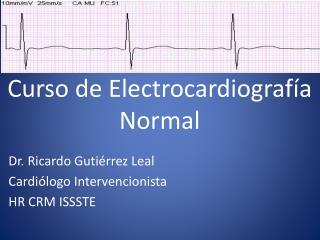 Curso de Electrocardiografía Normal