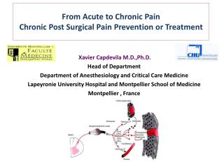 From  Acute to  Chronic  Pain Chronic  Post  Surgical  Pain  Prevention  or  Treatment
