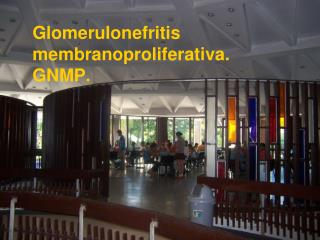 Glomerulonefritis membranoproliferativa. GNMP.
