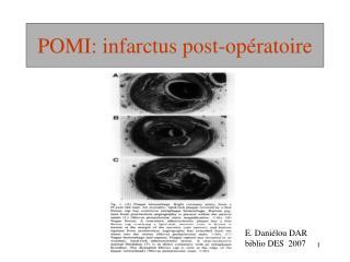 POMI: infarctus post-opératoire