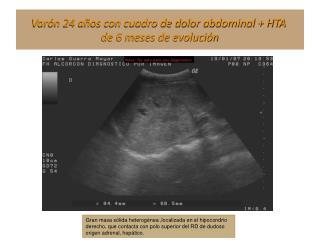 Varón 24 años con cuadro de dolor abdominal + HTA  de 6 meses de evolución