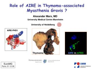 Role of AIRE in Thymoma-associated Myasthenia Gravis ?