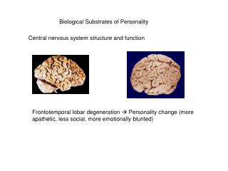 Biological Substrates of Personality