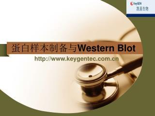 蛋白样本制备与 Western Blot
