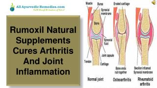 Rumoxil Natural Supplements Cures Arthritis And Joint Inflam