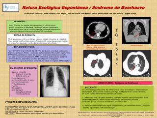 Rotura Esofágica Espontánea : Síndrome de Boerhaave
