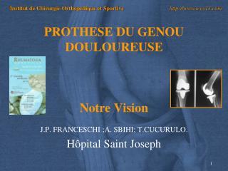 PROTHESE DU GENOU DOULOUREUSE Notre Vision