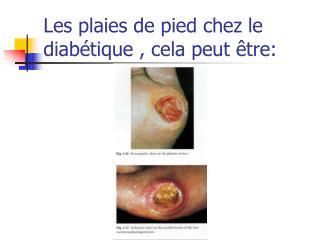Les plaies de pied chez le diabétique , cela peut être: