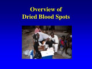 Overview of  Dried Blood Spots