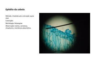 Epitélio da cebola
