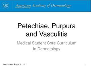 Petechiae, Purpura   and Vasculitis