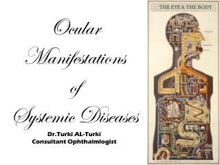 Ocular Manifestations  of  Systemic Diseases Dr.Turki  AL- Turki Consultant  Ophthalmlogist