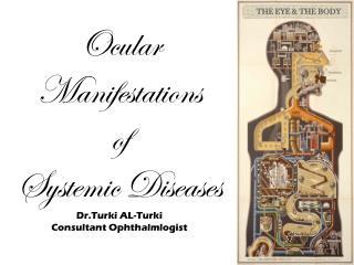 Ocular Manifestations  of  Systemic Diseases Dr.Turki  AL- Turki Consultant  Ophthalmlogist