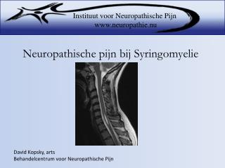 Neuropathische pijn bij Syringomyelie