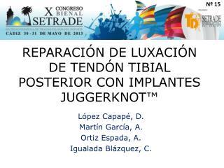 REPARACIÓN DE LUXACIÓN DE TENDÓN TIBIAL POSTERIOR CON IMPLANTES JUGGERKNOT™