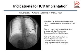 Indications for ICD Implantation