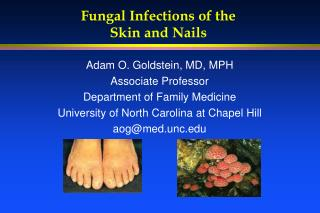 Fungal Infections of the  Skin and Nails