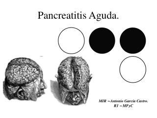 Pancreatitis Aguda.