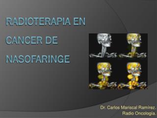 RADIOTERAPIA EN CANCER DE NASOFARINGE