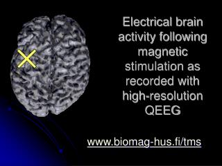Electrical brain activity following magnetic stimulation as recorded with high-resolution  Q EEG