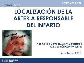 LOCALIZACIÓN DE LA ARTERIA RESPONSABLE  DEL INFARTO